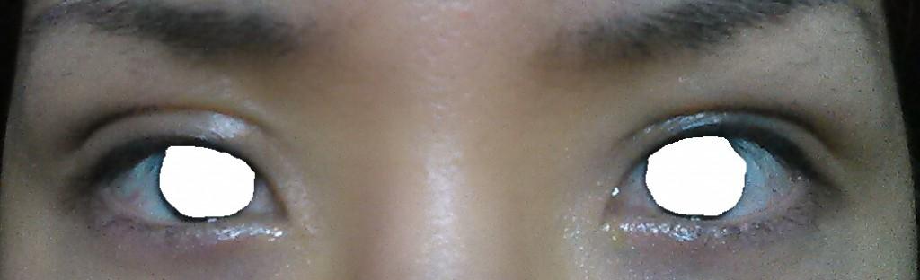 眼瞼下垂、術後半年