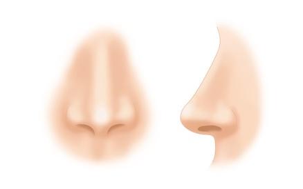 鼻尖縮小術