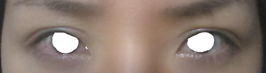 眼瞼下垂(修正手術)、術後半年