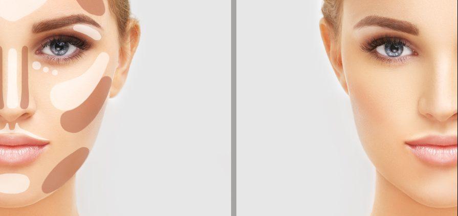 鼻尖縮小術(団子鼻修正)の失敗・修正・トラブル