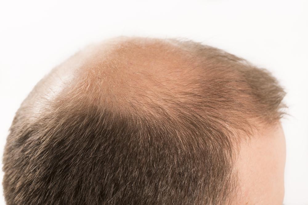 人工植毛の効果とリスク・失敗の裏側!