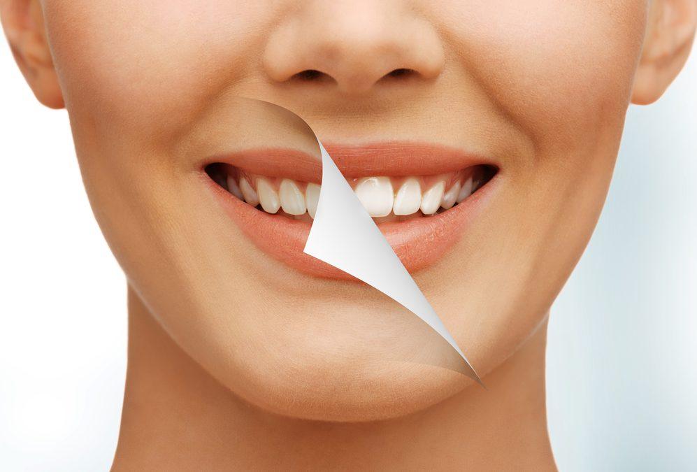 ラミネートベニア治療(前歯)の失敗やリスクとデメリット