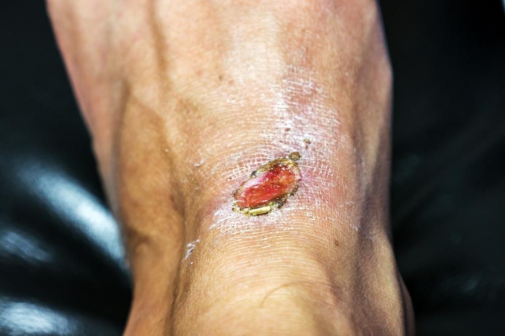しこり除去(粉瘤アテローム)のぶっちゃけのリスクと失敗・修正