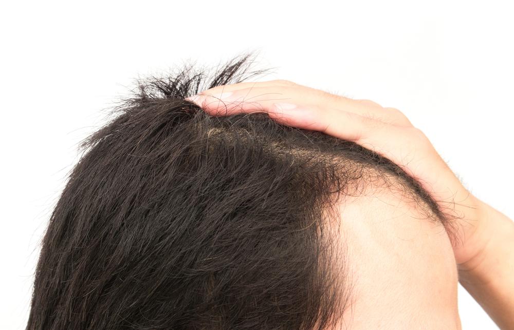 植毛(薄毛治療)の効果とリスク・失敗の裏側!