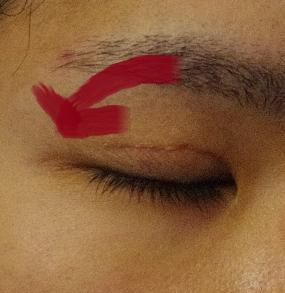 外眼角靭帯移動術