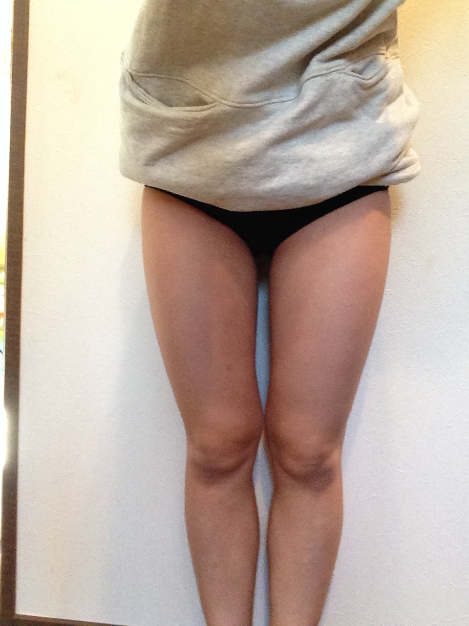 ベイザー脂肪吸引 太ももの脂肪吸引後 3カ月 コンデンスリッチ豊胸併用