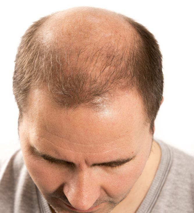 グロースファクター再生療法の発毛の効果は?リスクとデメリット・副作用とは?
