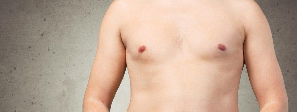 女性化乳房修正術の効果と失敗・リスクの注意点!