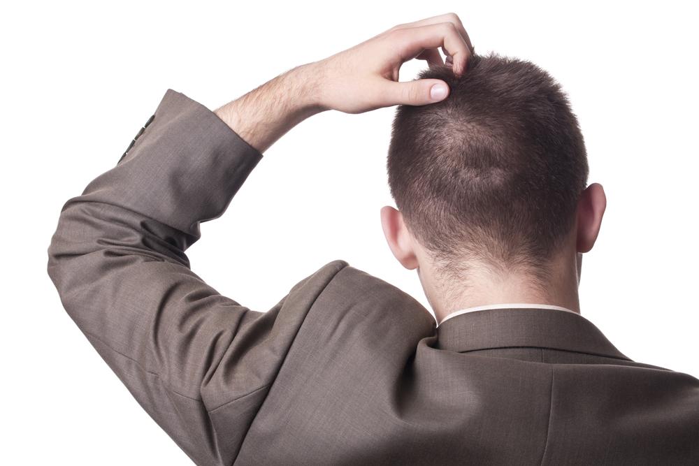 頭頂部ハゲ(AGA)の発毛の効果は?リスクとデメリット・副作用とは?