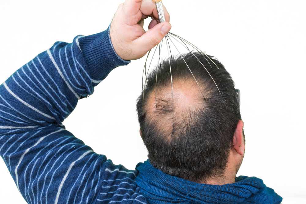 ミノキシジル(内服・外用)の発毛の効果は?リスクとデメリット・副作用とは?