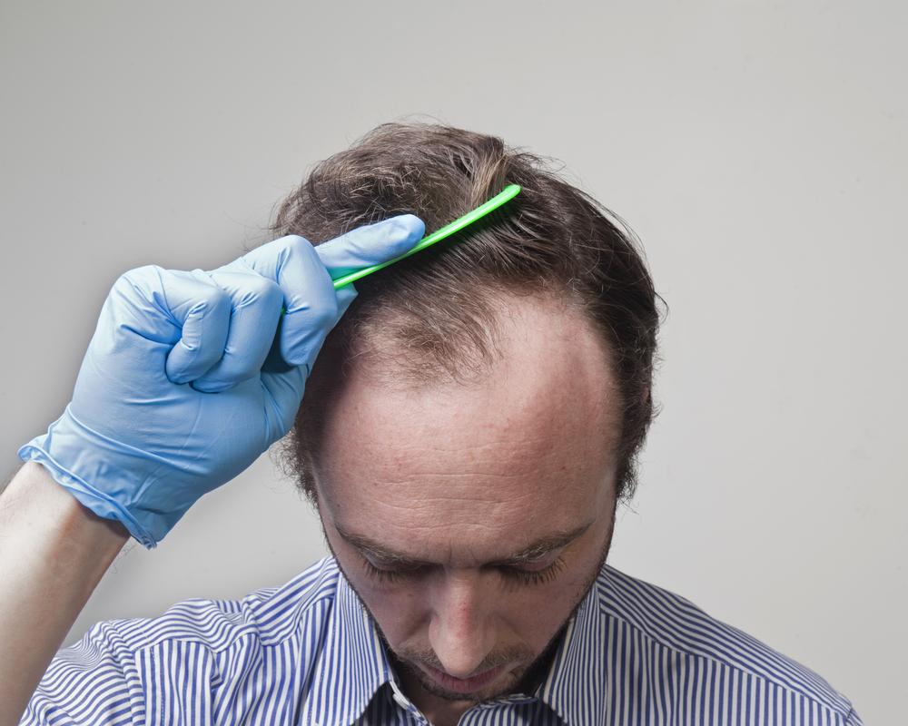 M字ハゲ(AGA)の発毛の効果は?リスクとデメリット・副作用とは?