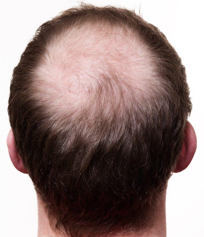 プロペシアの発毛の効果は?リスクとデメリット・副作用とは?