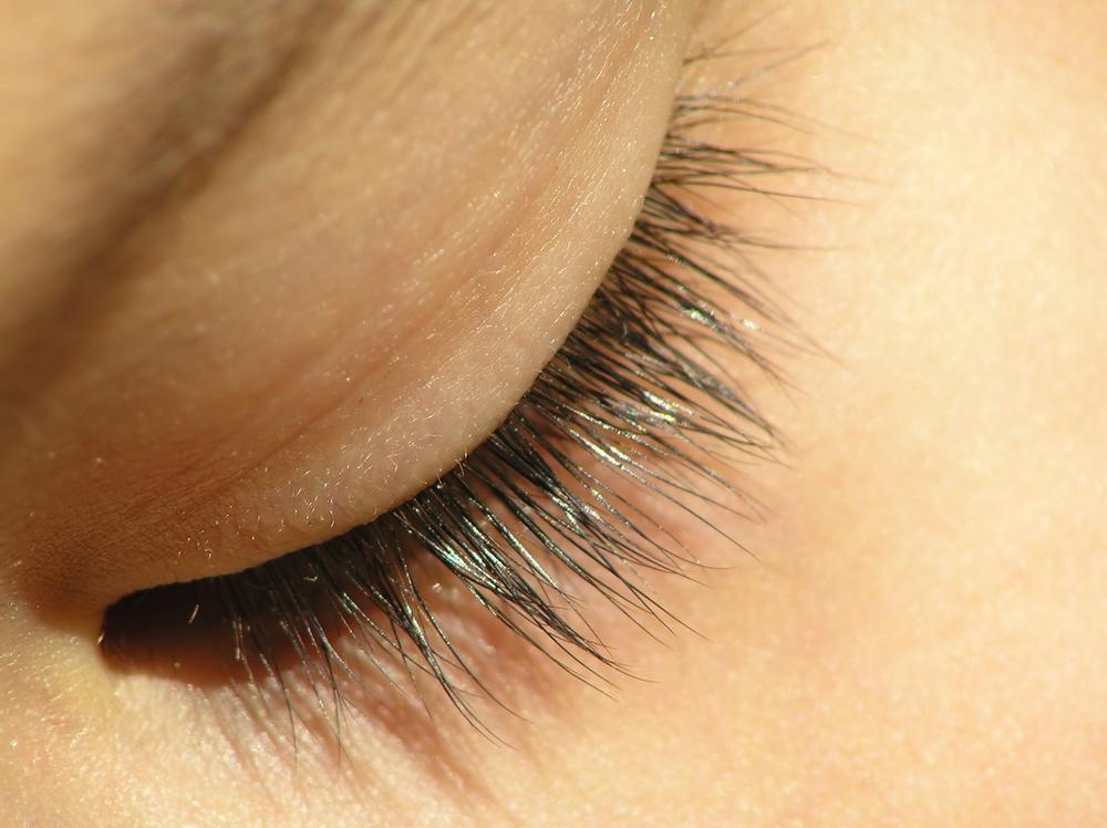 上端瞼板固定法のリスク
