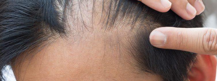 ロボット植毛(アルタス・ARTAS)の発毛の効果は?リスクとデメリット・副作用とは?