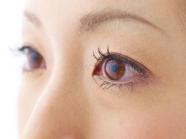 上瞼・下瞼の脂肪注入のメリット
