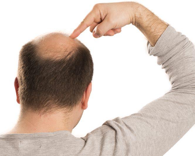 植毛FUE法(薄毛治療)の発毛の効果は?リスクとデメリット・副作用とは?