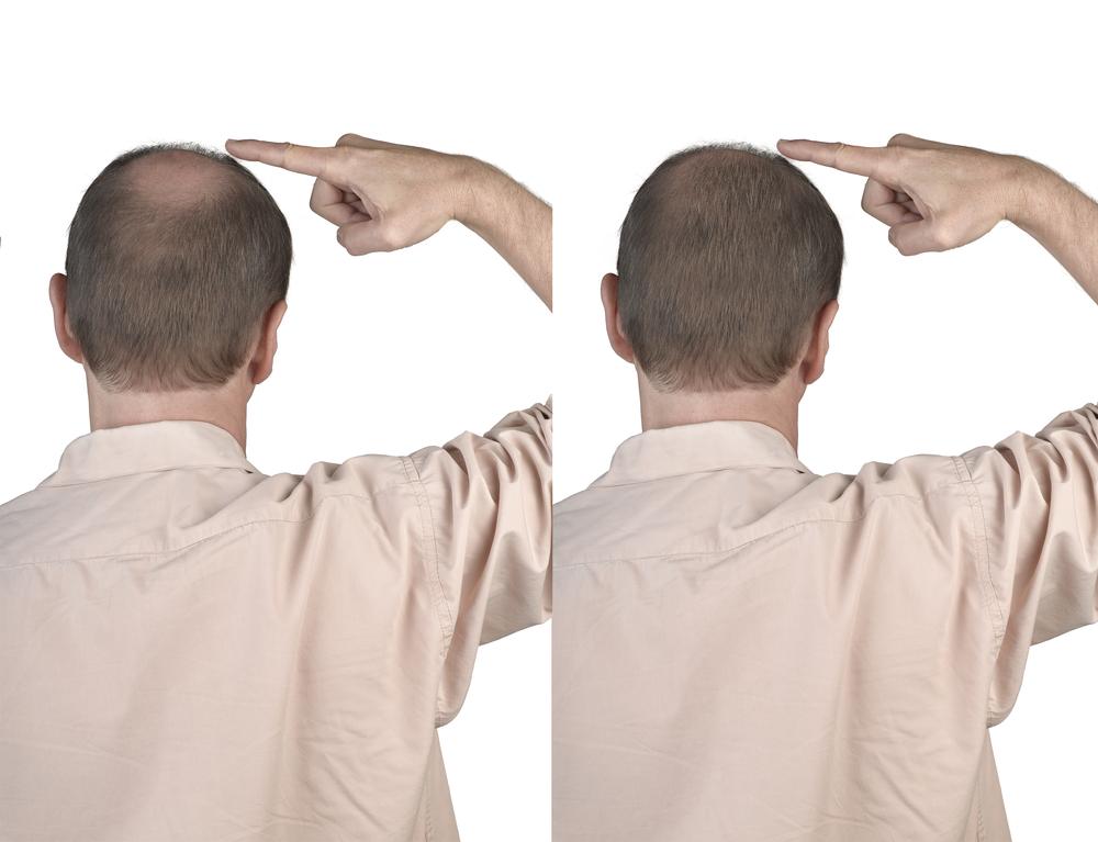 植毛FUT法(薄毛治療)の発毛の効果は?リスクとデメリット・副作用とは?