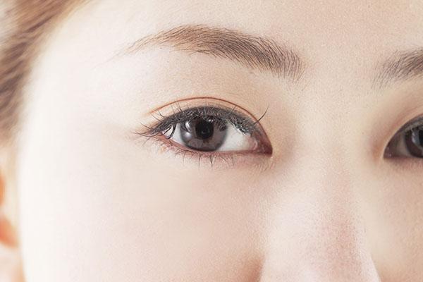 上眼瞼脱脂法(腫れぼったいまぶたの脱脂)のメリット
