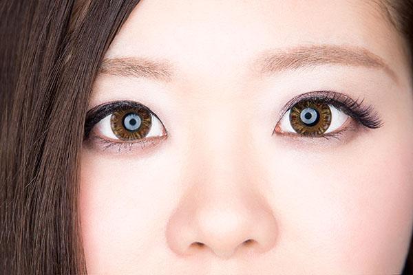 下眼瞼拡大術(たれ目形成)のメリット