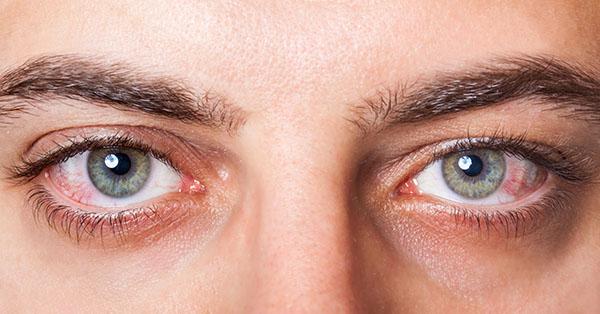 眉下切開法(上眼瞼リフト)の効果