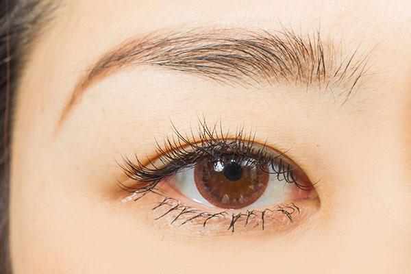 下眼瞼切開法の効果