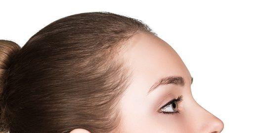 下眼瞼脱脂法のリスク