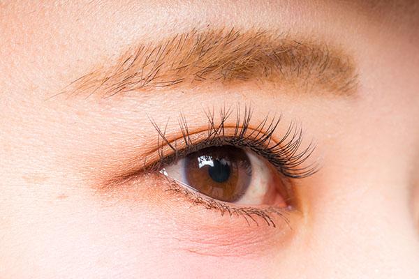 眼瞼下垂(挙筋前転法)のアフターケア