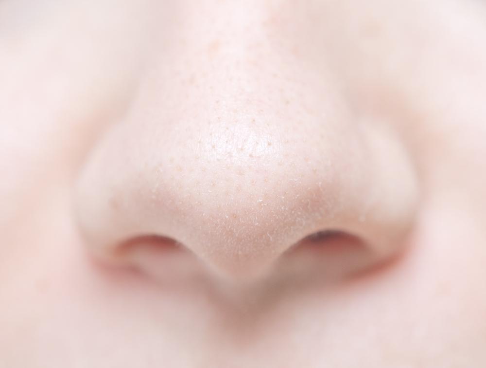 鼻翼基部プロテーゼに失敗するとどうなってしまうの?