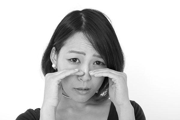 鼻孔縁形成の失敗