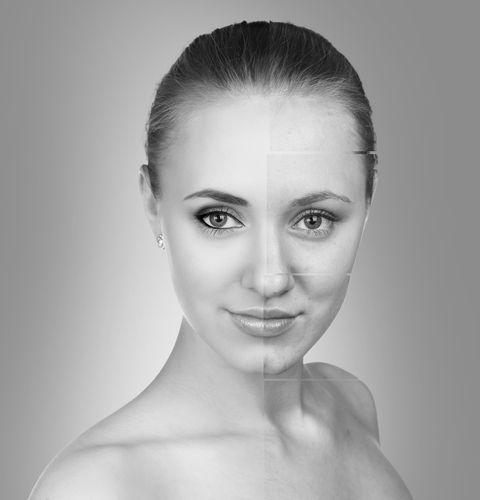 プチ鼻翼縮小術の効果