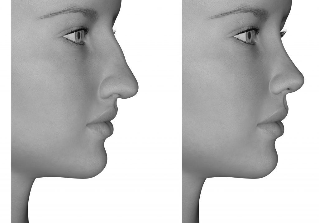 プチ小鼻縮小術の効果