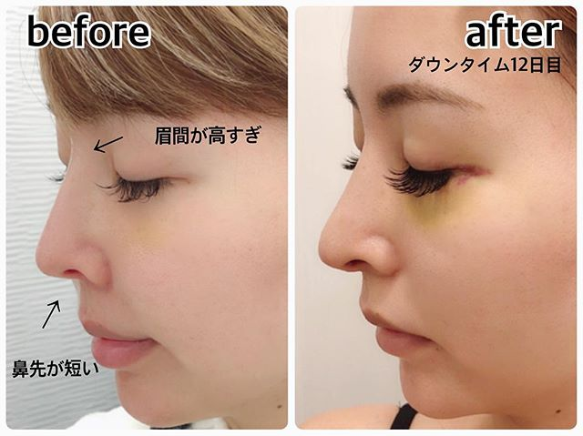 吉川ちかがした鼻中隔延長術(肋軟骨)の効果・メリットとおすすめクリニック紹介