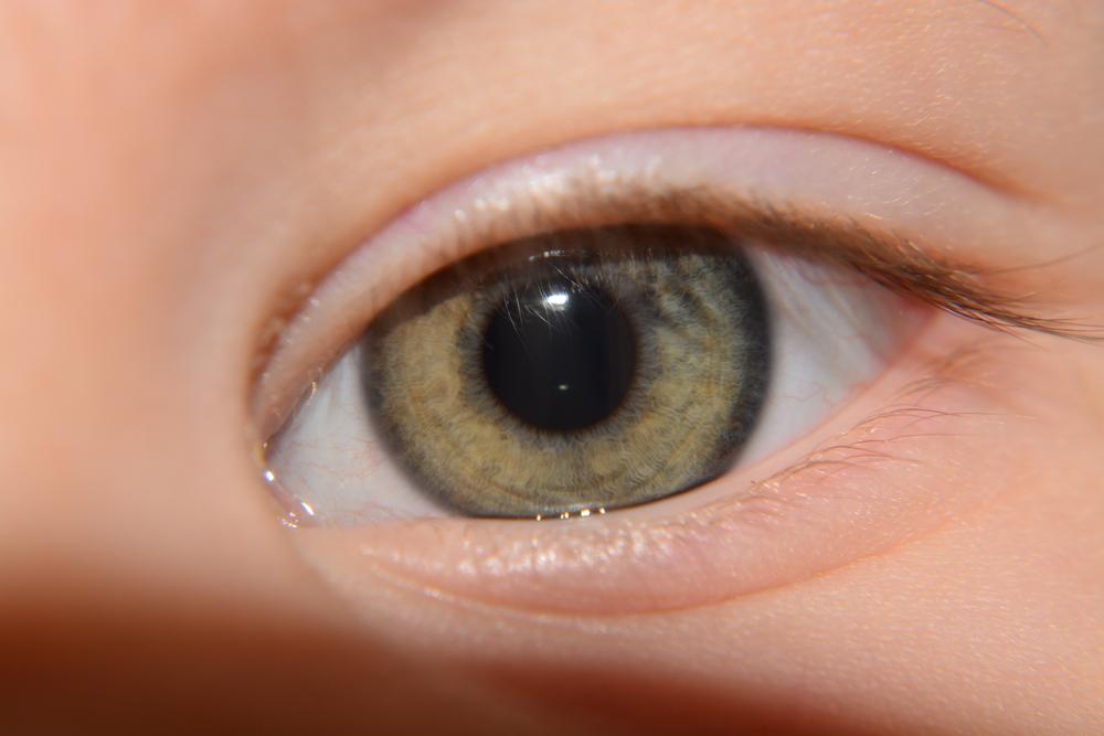 目を大きくする整形の症例・写真