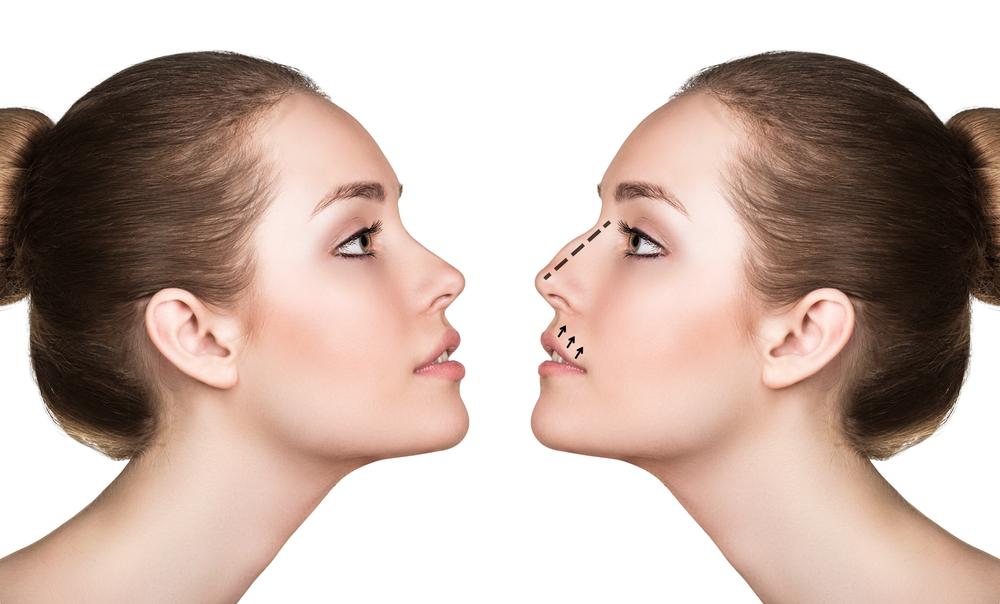 鼻を低くする整形の失敗とは?