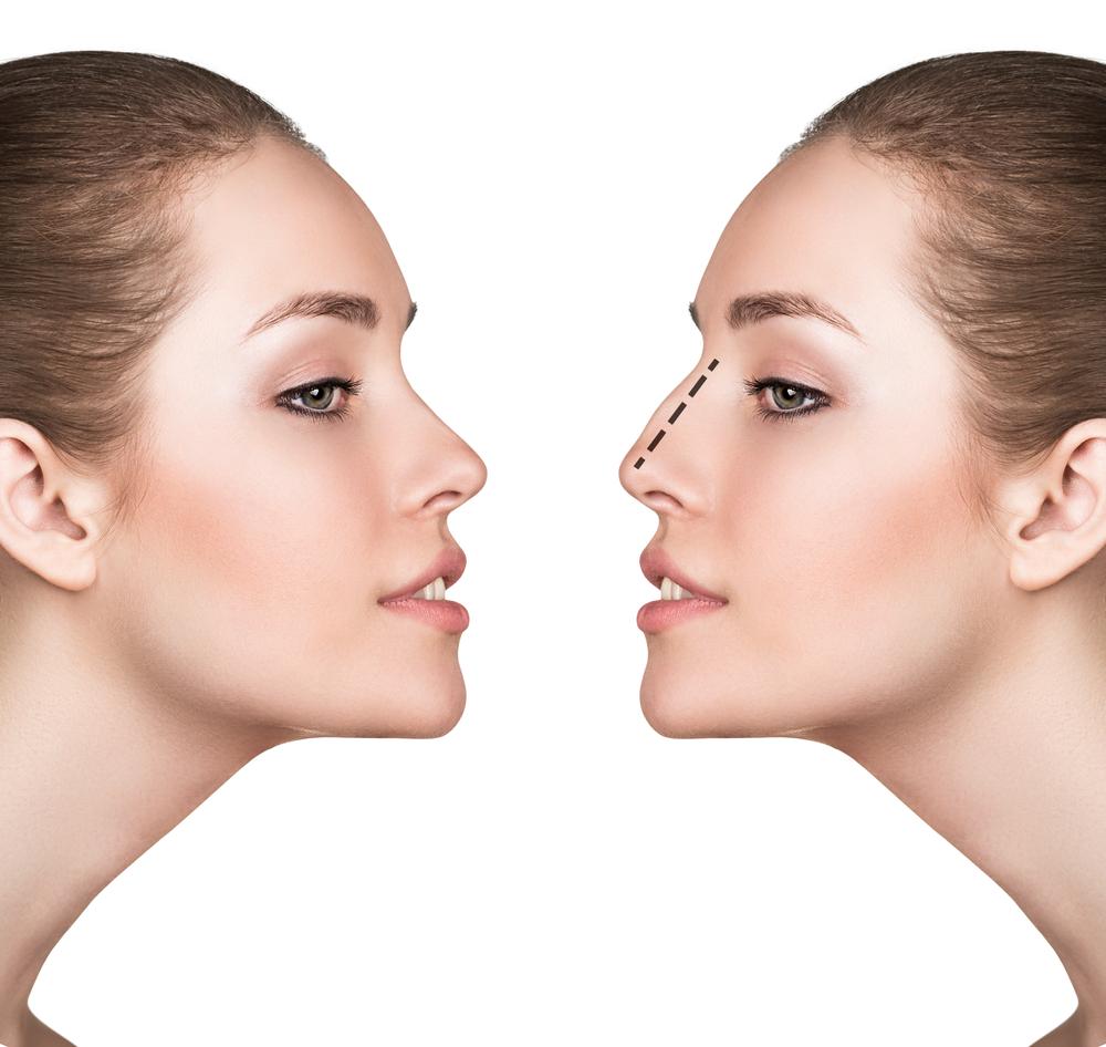 鼻を低くする整形