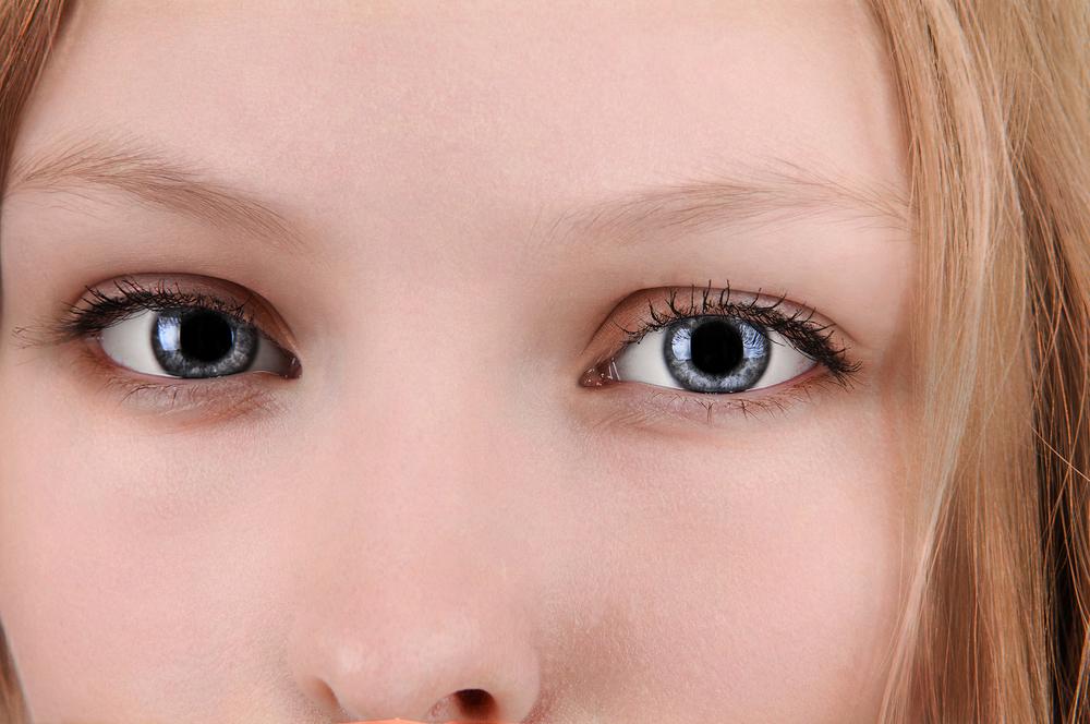 上瞼・下瞼の脂肪注入の症例写真