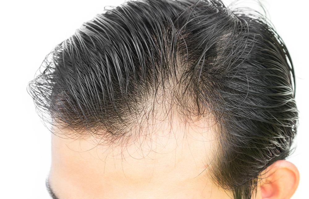 FUE植毛の失敗を分析