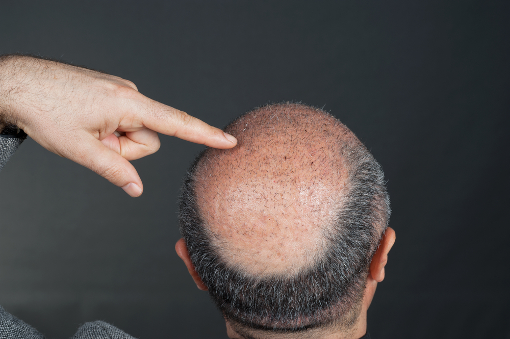 FUT植毛治療の失敗例をまとめてみた