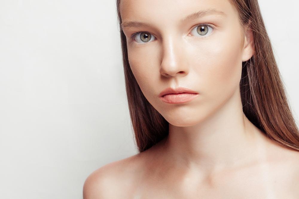 口唇拡大術(VY前進粘膜筋弁法)の失敗の代表例