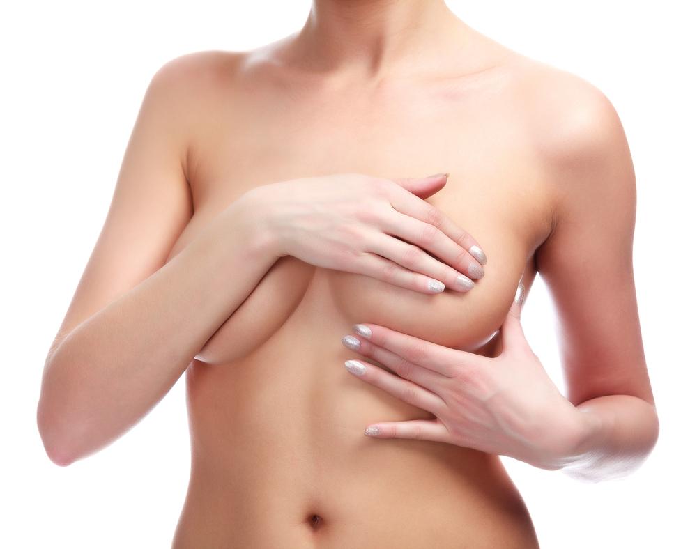 乳腺下法(豊胸バッグ)に失敗