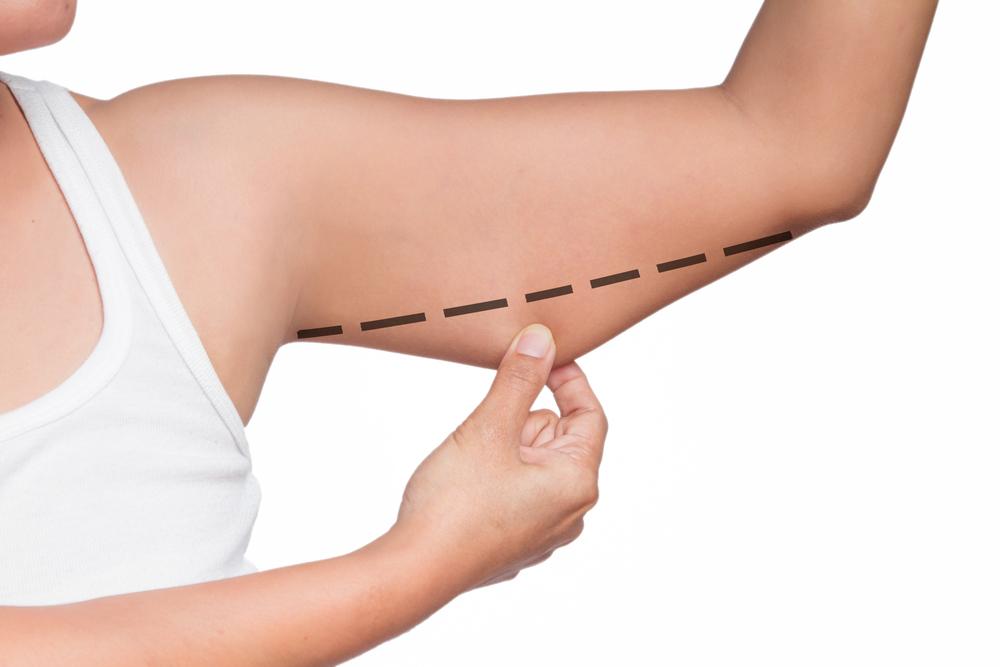 二の腕の脂肪吸引の修正