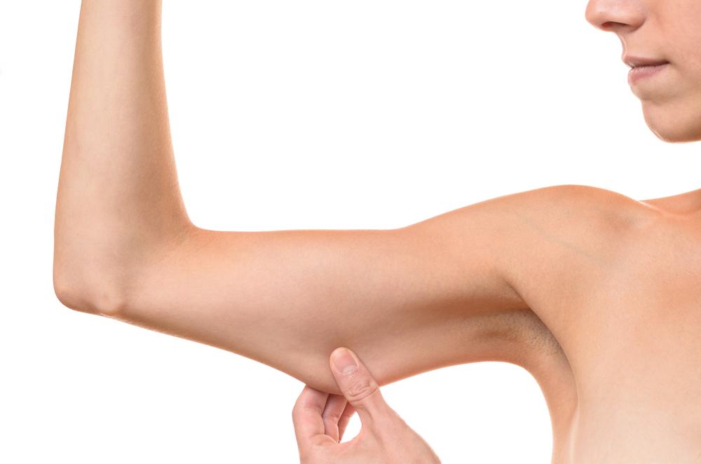 二の腕の脂肪吸引の料金相場