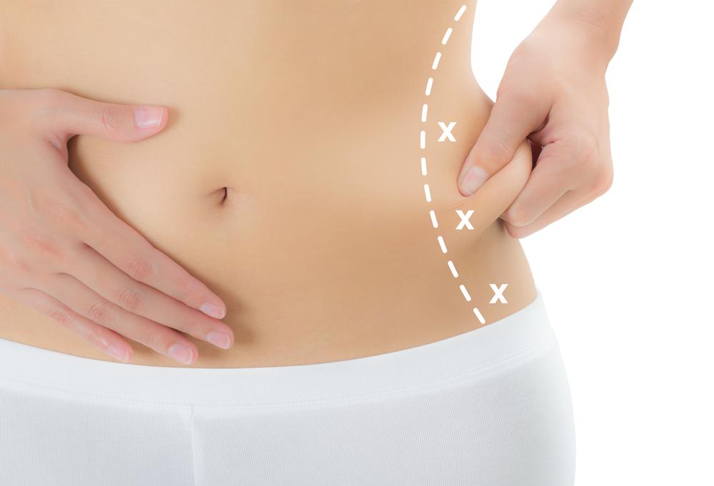 ウエストの脂肪吸引のアフターケアは圧迫固定やマッサージが重要?