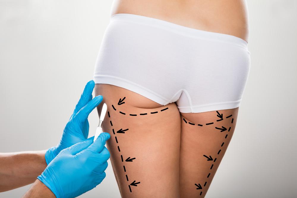 お尻・臀部の脂肪吸引の効果とはどのくらいなのか