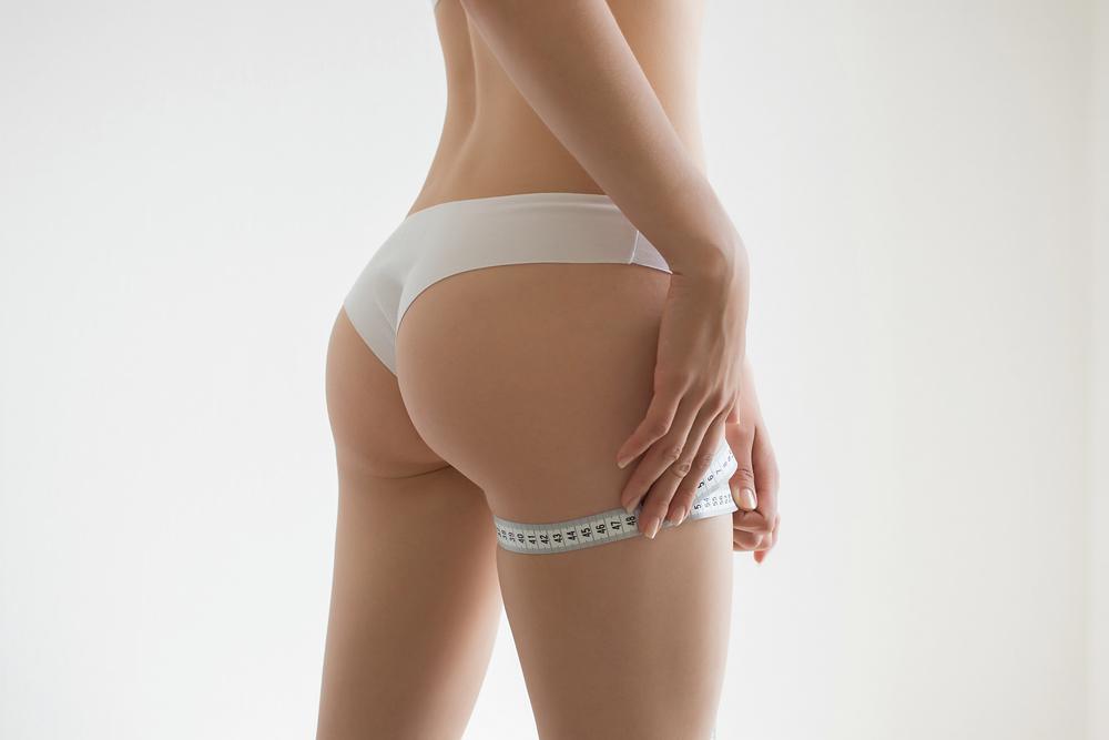 お尻・臀部の脂肪吸引の修正のケース2例をまとめ